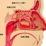 後鼻漏の原因が胃の不調・むくみと関係している